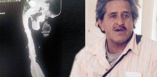 Dünyanın En Büyük Penisine Sahip Meksikalı Yardım Bekliyor